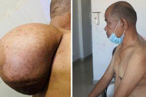 नोबेल अस्पतालमा शल्यक्रिया गरेर ढाडबाट निकालियो ५ किलोको मासुको डल्लो